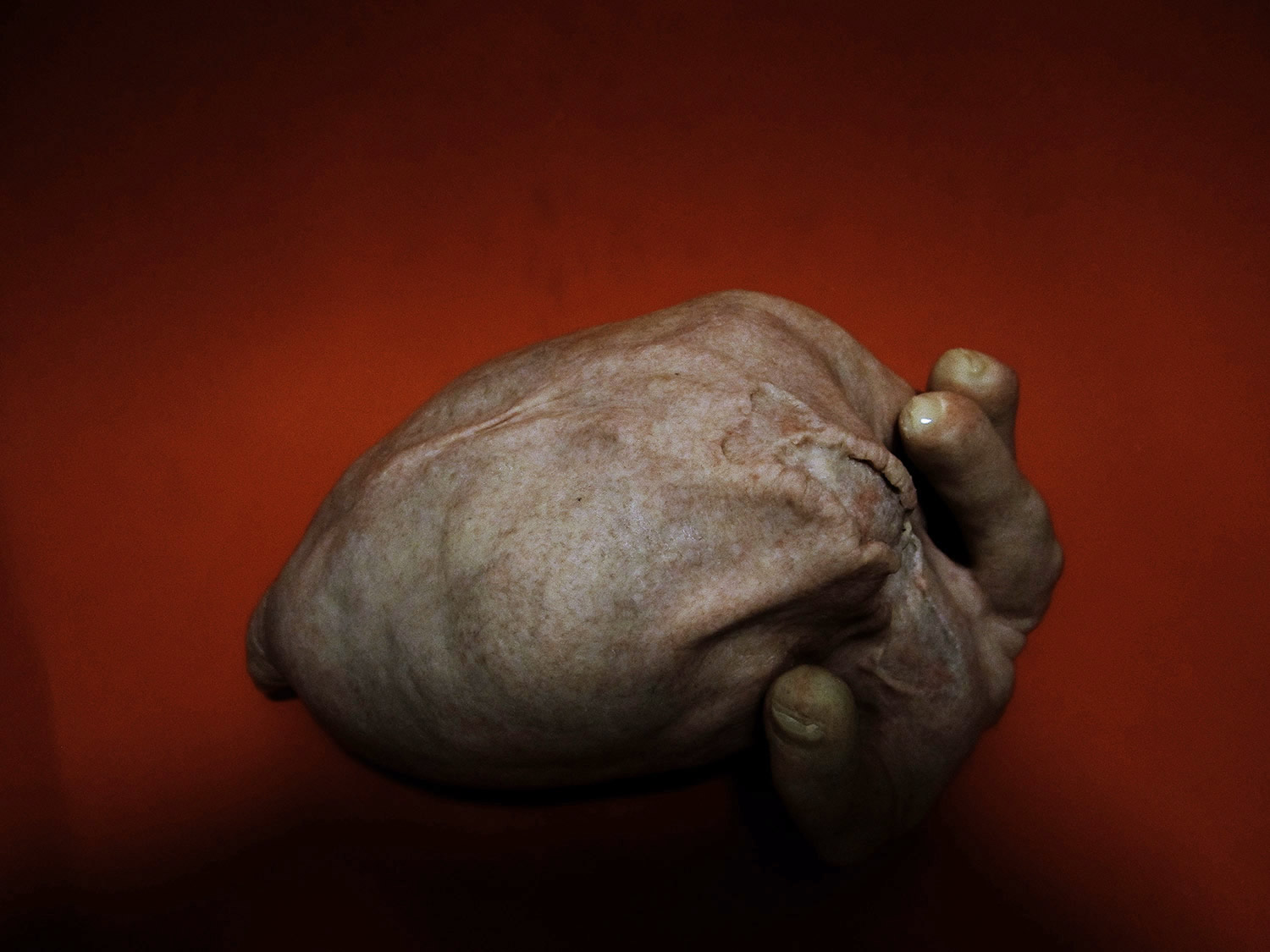 Russel Cameron, sculpture - deformed hand