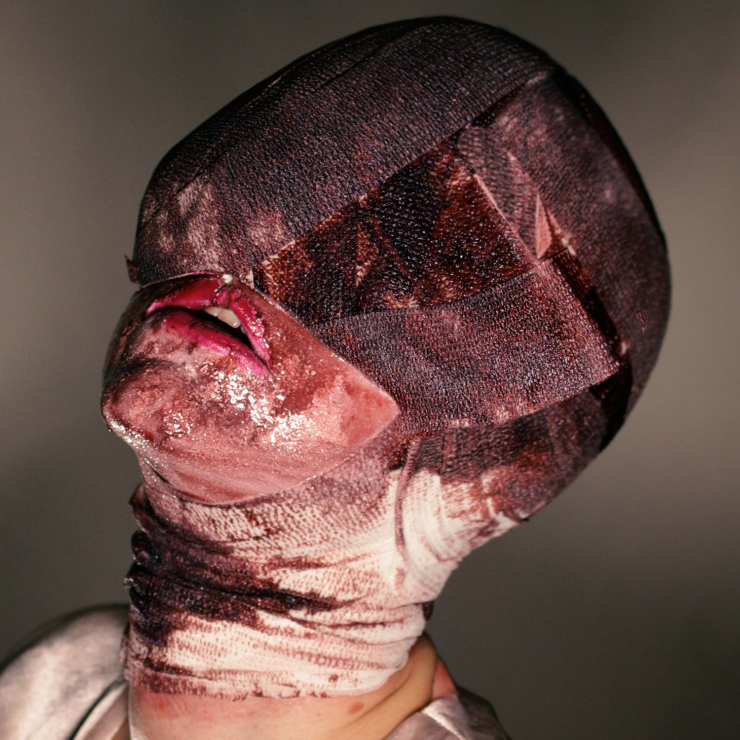 Javier Gallego Escutia - bloody bandaged face