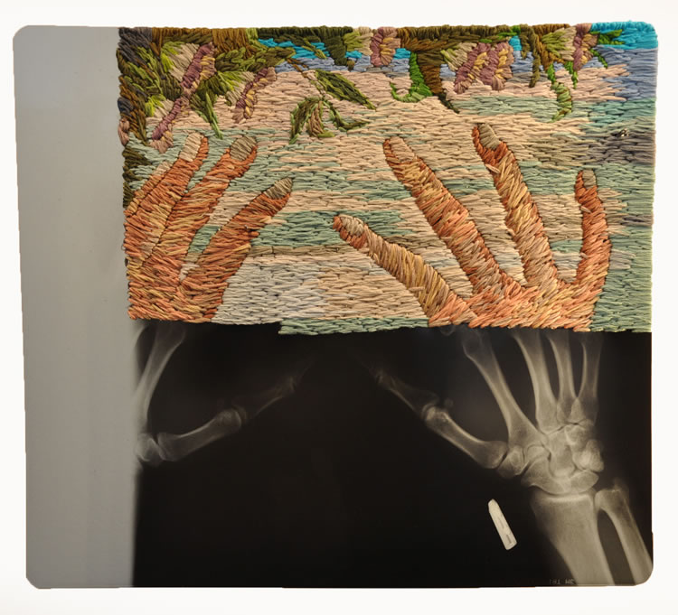 Embroidery on Recycled X-ray Sheets